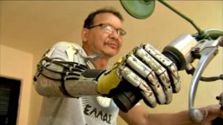 Do Ceará para o mundo! Brasileiro fabrica sua própria prótese de braço