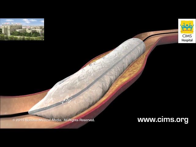 Non cardiac Percutaneous Transluminal Angioplasty (NCPTA)