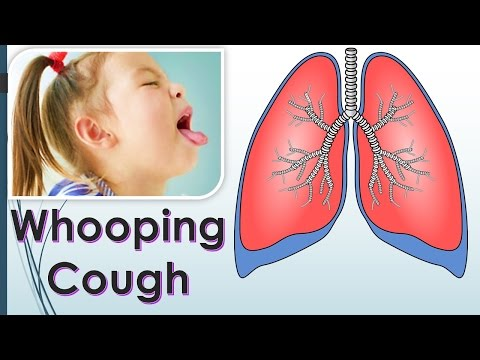 How do you Get Whooping Cough? What is the cause of Whooping Cough?