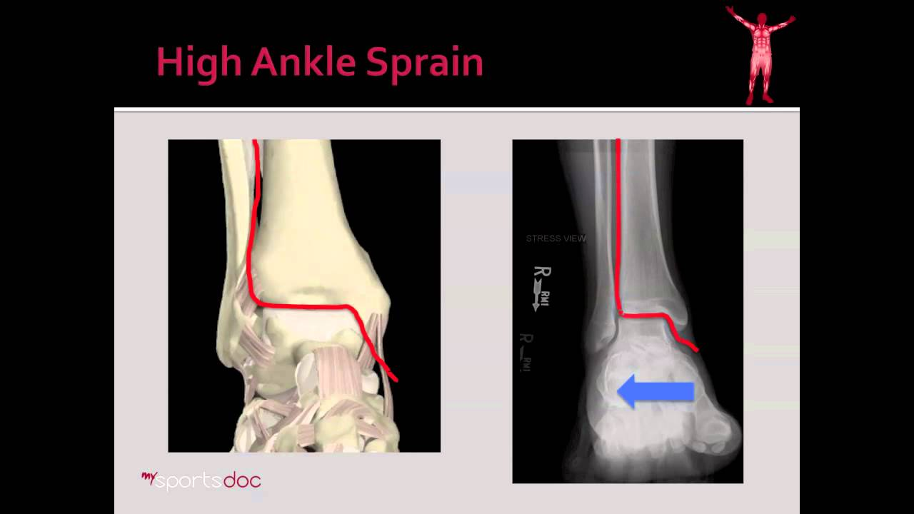 Ankle Injuries | Rehabilitation Of Ankle Injuries | Ossur Webshop