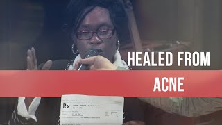 HEALED From Acne After Prayer