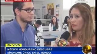 TVC Hoy Mismo al Día- Medico hondureño descubre un síndrome único en el mundo