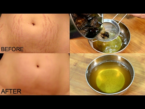 how to get rid of bad pregnancy stretch marks