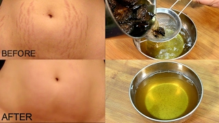 Get Rid Stretch Marks Days Stretch Marks Removal Simple Beauty Secrets