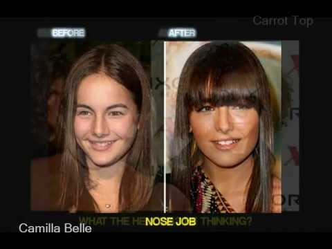 Celebrity Plastic Surgery Before And After Youtube