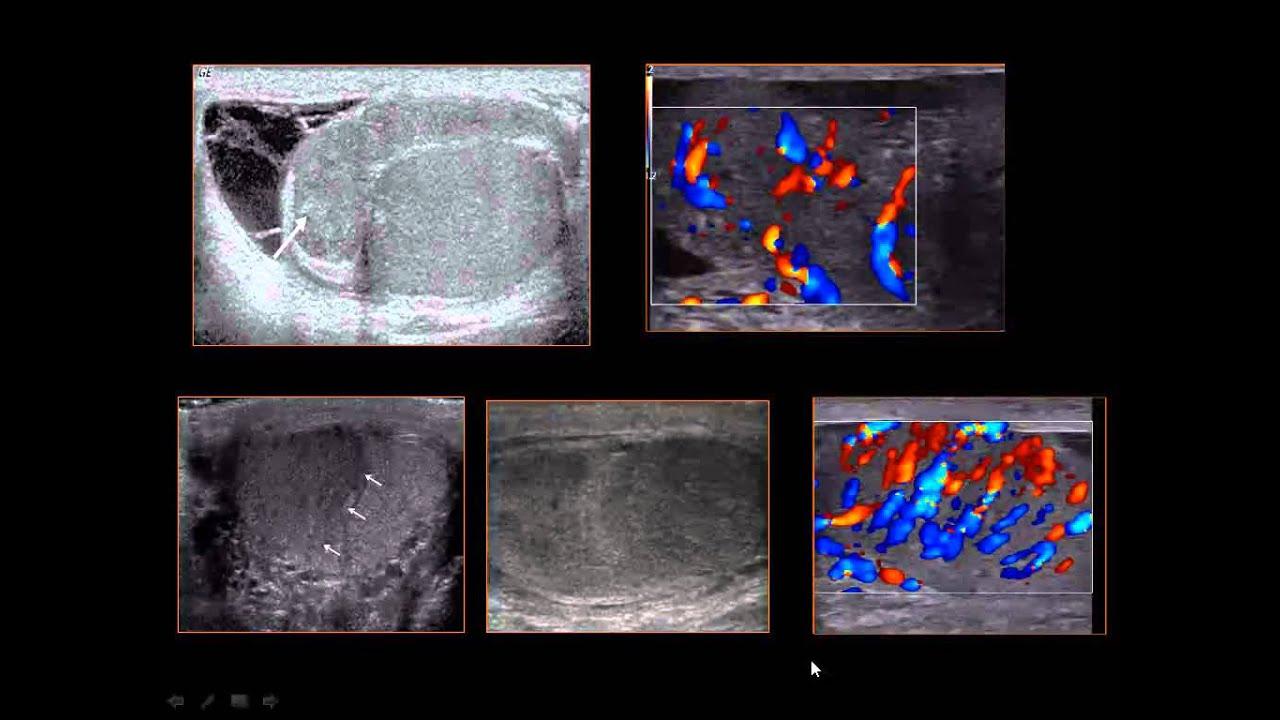 scrotal ultrasound - Gecce.tackletarts.co