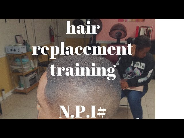 Hair Replacement training for licensed professionals