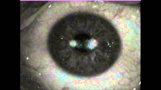 My left eye Topoguided PRK+CXL laser surgery on 2014-08-28