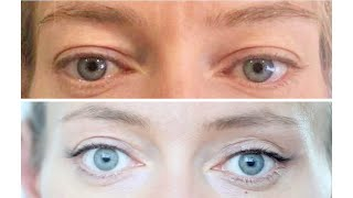 пластическая хирургия: до и после. #Блефаропластика. Мой опыт.