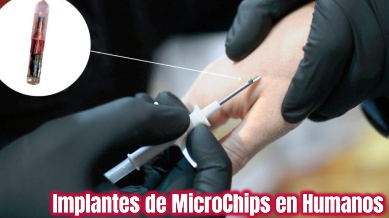Señoras y Señores, la Implantación del Chip en nuestro Cuerpo ha llegado a España