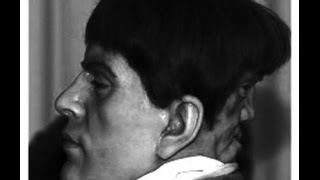 Urban Legends:  The Curious Case of Edward Mordake