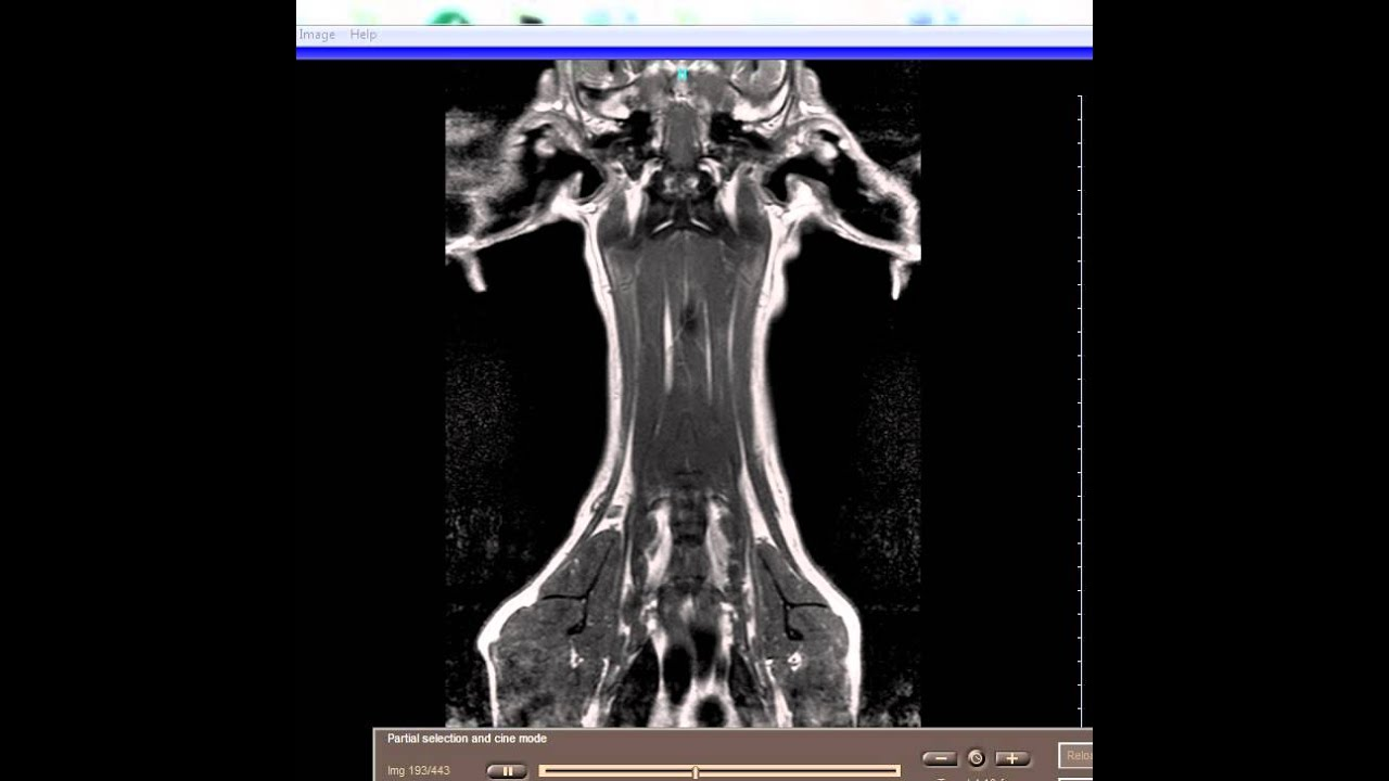 MRI brachial plexus - YouTube
