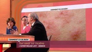 [SANTE] Tout savoir sur l'eczéma #CCVB