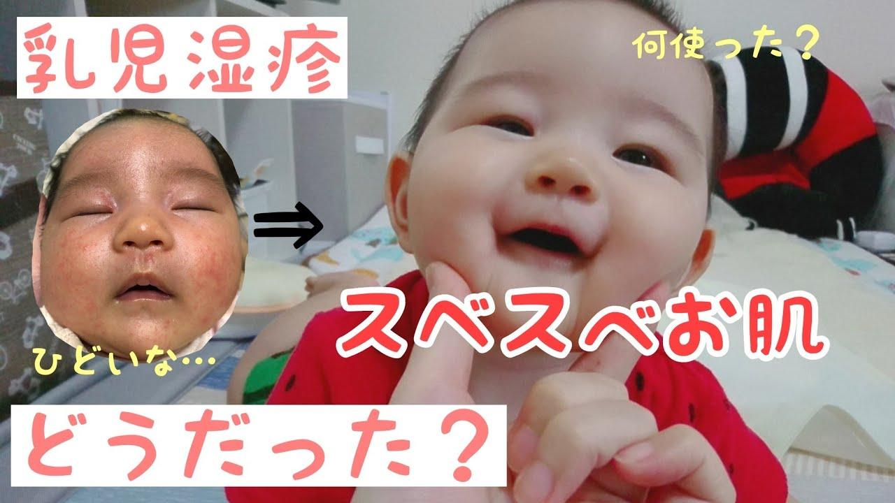 湿疹 乳児