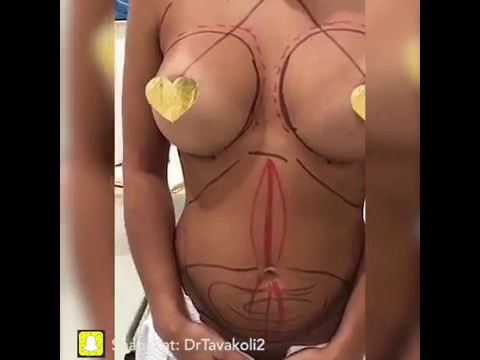 fat injection augmentation with Breast