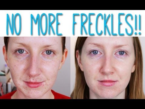 LASER FOR PIGMENTATION REMOVAL - BEFORE AND AFTER