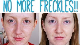 laser for pigmentation removal before and after
