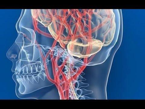 Нарушение мозгового кровообращения: симптомы, лечение