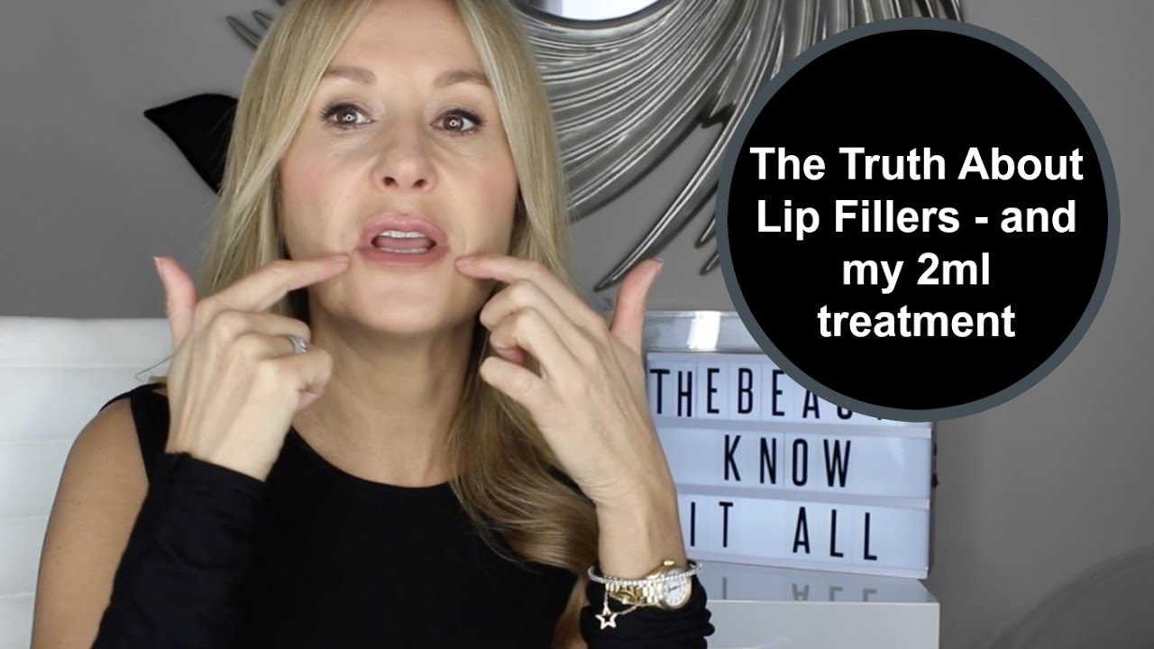 The Truth About Lip Fillers (and my 2ml injections) - Nadine Baggott