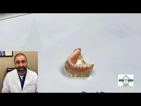 dr.-mansouri-explains-implant-dentures