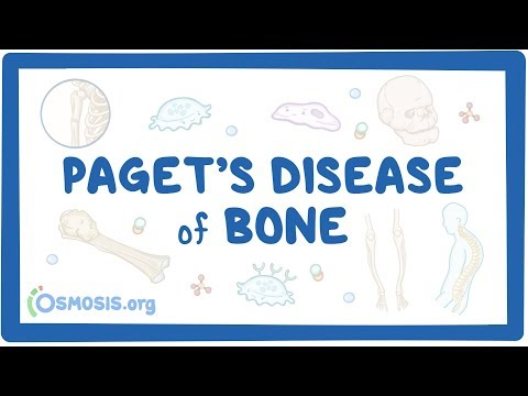 Paget's disease of bone