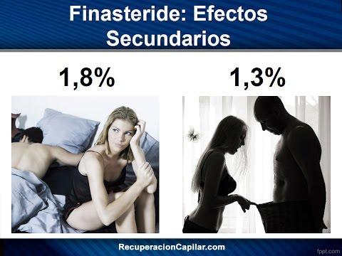 Finasteride: Efectos Secundarios | ¿Tu Vida Sexual Puede Verse Afectada?