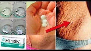 Video Elimina rápidamente las estrías con aspirina, los resultados no los podrás creer!! download MP3, 3GP, MP4, WEBM, AVI, FLV November 2017
