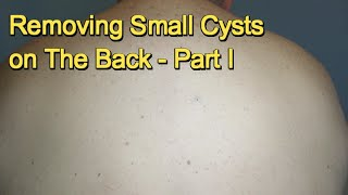 Removing Small Cysts on The Back -  Part I thumbnail