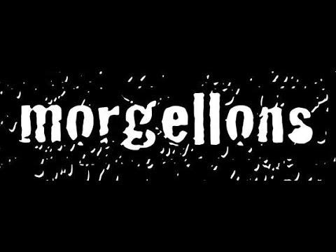 Morgellons @ Dublin Castle - 29.09.17