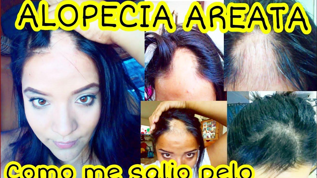 Estándar Rechazo motivo  Tengo alopecia Areata - como curar la alopecia - caida de cabello - calvicie  - enfermedades - YouTube