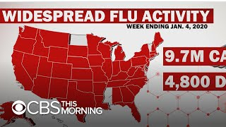 Worst Us Flu Seasons