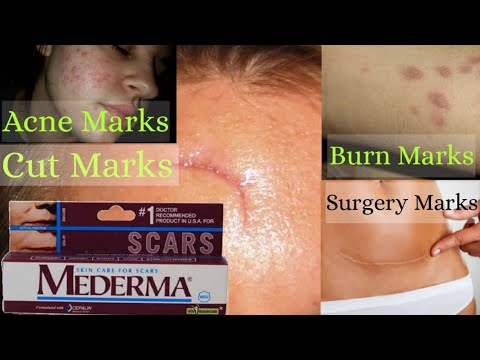 Mederma Cream Review And Uses In Hindi How To Remove Surgery Scars Burn Scars Cut Marks Acne Youtube
