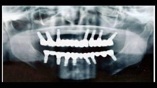秋田インプラントセンター症例5すべて人工歯でとにかく美しく仕上げたい