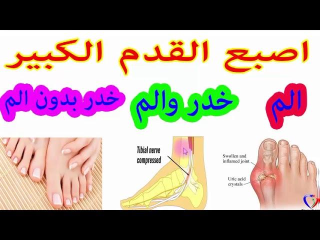 خدر وتنميل اصبع القدم الكبير الاسباب والعلاج Youtube