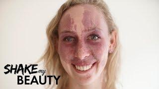 My Birthmark Is Beautiful | SHAKE MY BEAUTY