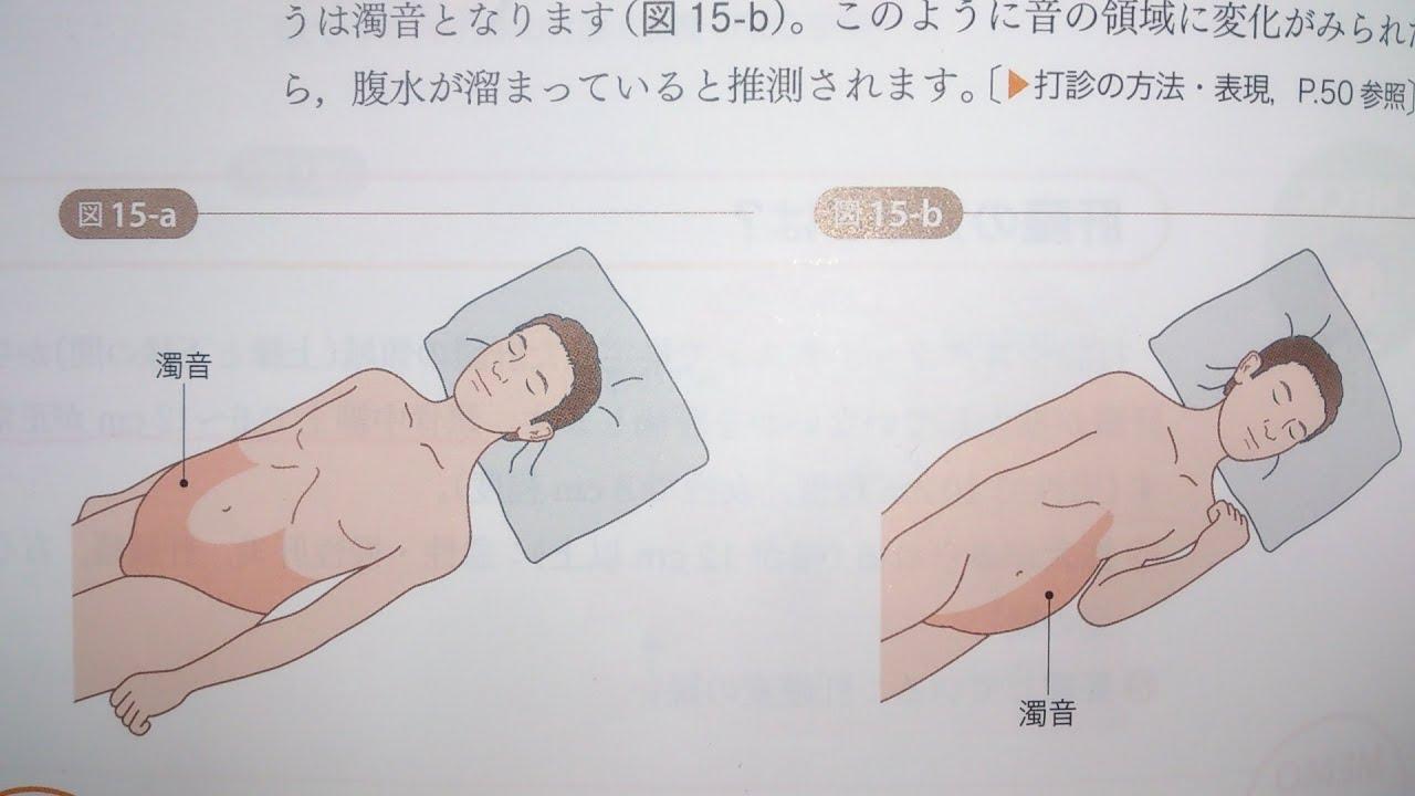 看護学生講座 174 打診 「腹水の...