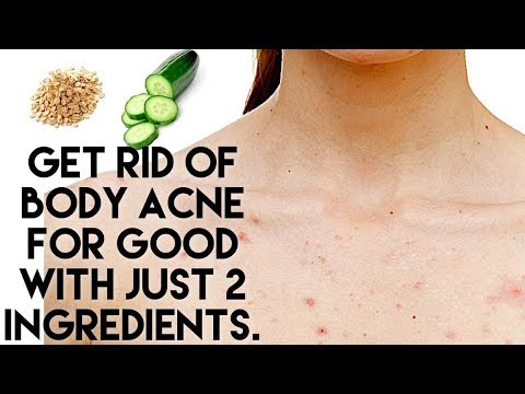 get-rid-of-body-acne-for-good-with-just-2-ingredients.