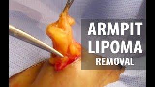 Armpit Lipoma Removal | Dr. Derm