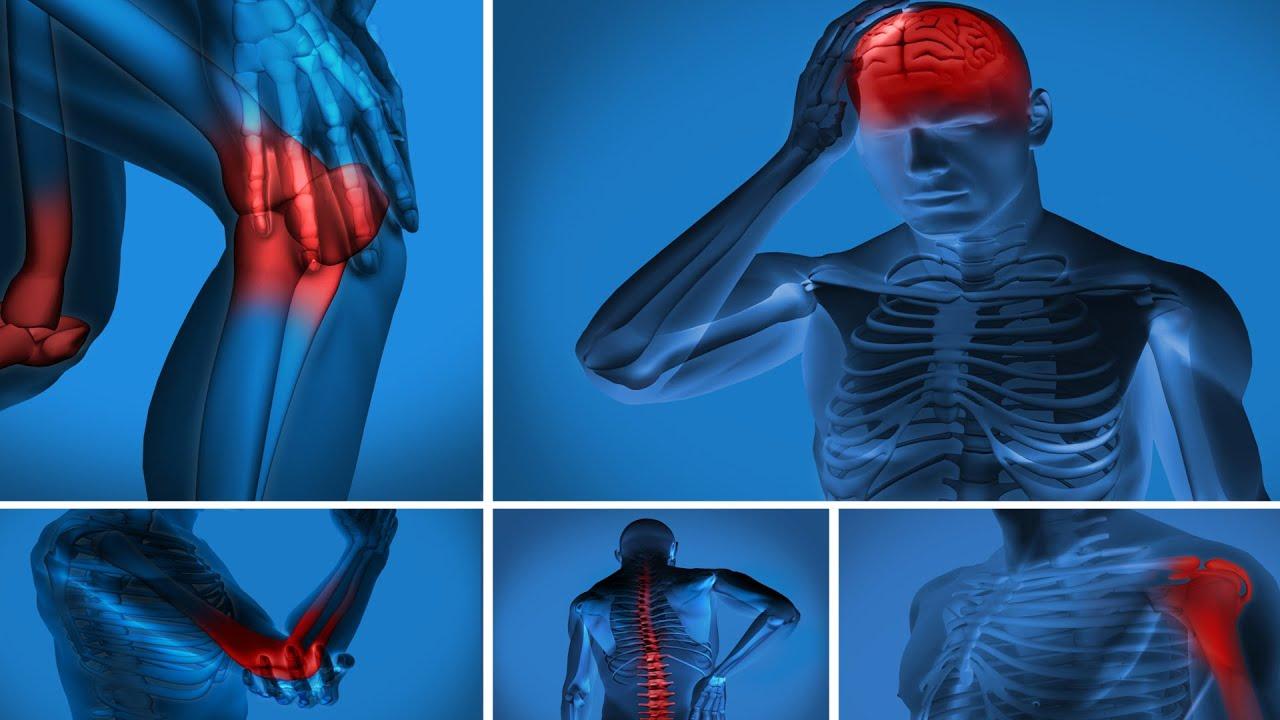 Fibromialgia: radiografía de una dolorosa enfermedad - YouTube