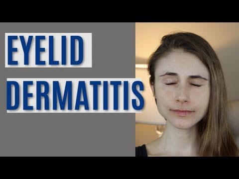 EYELID DERMATITIS| SKIN CARE Q&A WITH DERMATOLOGIST DR DRAY