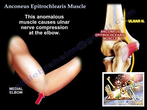 Anconeus Epitrochlearis Muscle ,cubital tunnel - Everything You Need ...
