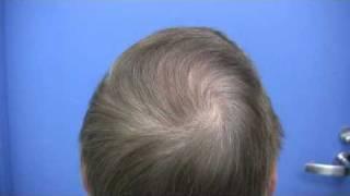 Dr Wong Hair Transplant Patient - 5409 Grafts - 1 Session