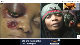Black woman Veteran tasered in the eye by police. (Please share video).
