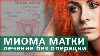 Лечение миомы матки. Методы лечения миомы матки. ЦЭЛТ