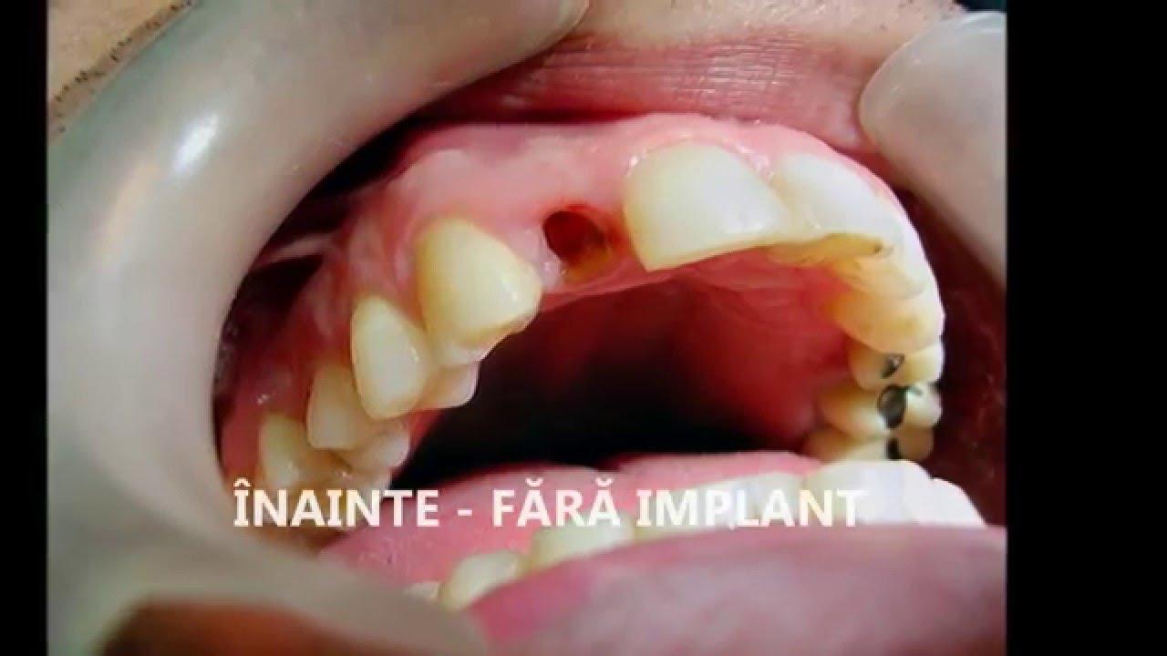 cat costa un implant dentar in romania
