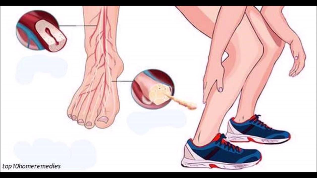Dor e peso nos quadris e pernas