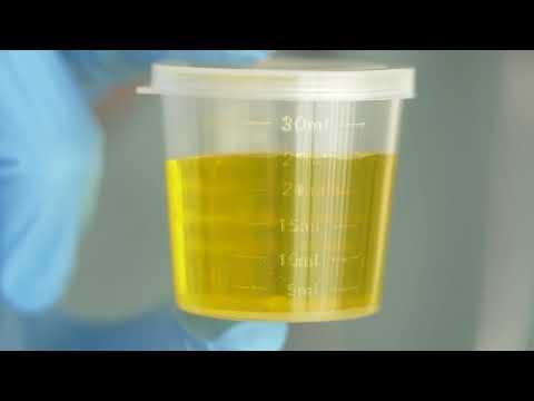 Как избавиться от лейкоцитов в моче народными средствами за короткое время в домашних условиях