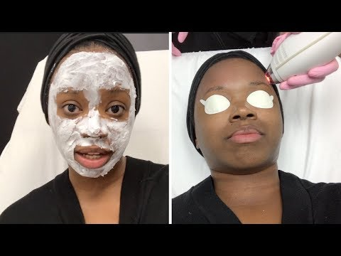 FIXING MY HUGE PORES! Clear & Brilliant at LaserAway