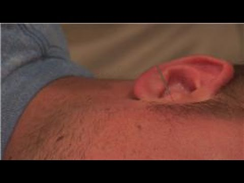 Acupuncture Treatments : Acupuncture Treatment for Tinnitus