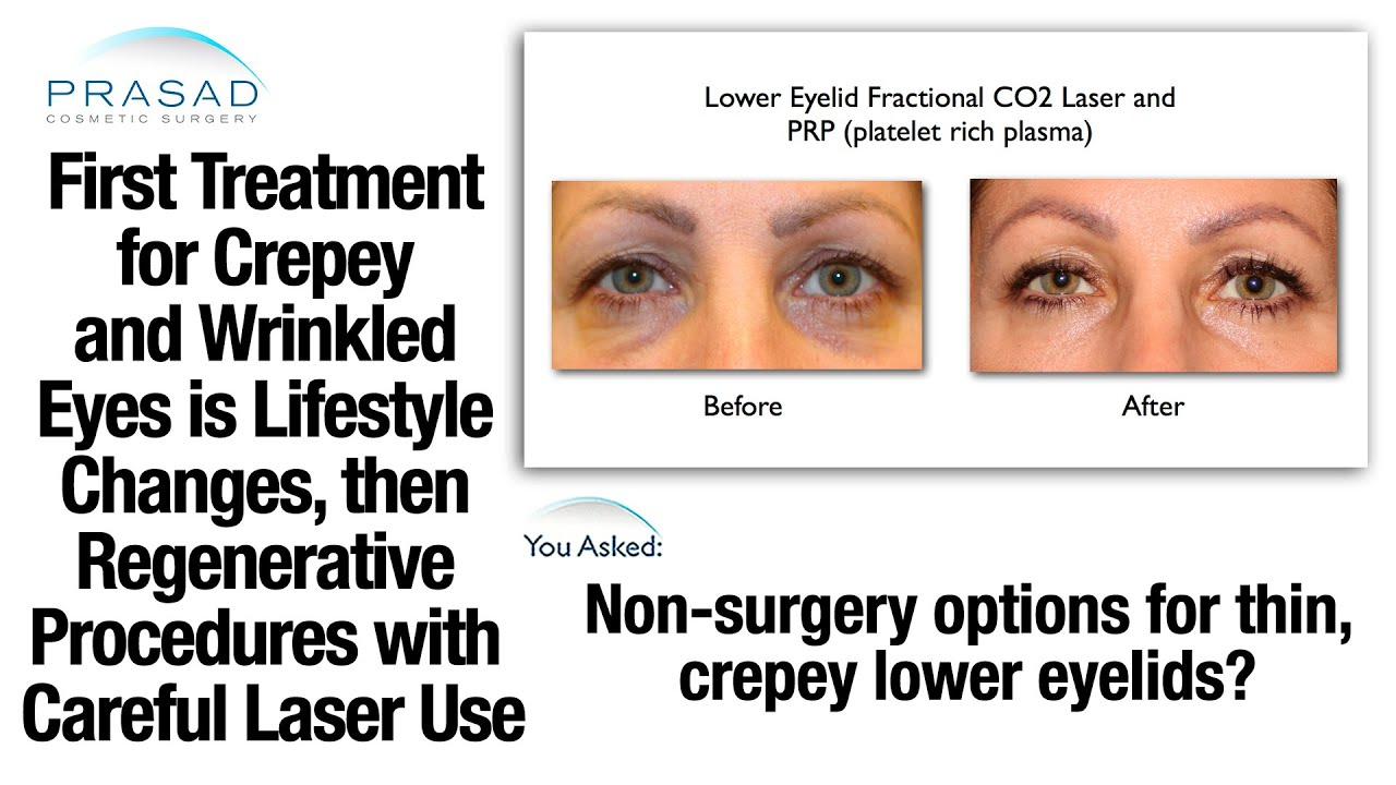 Treating Crepey Under Eyelid Skin With Platelet Rich